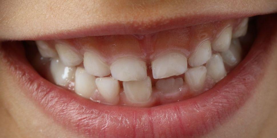 Fears Dental Services In Dubli...