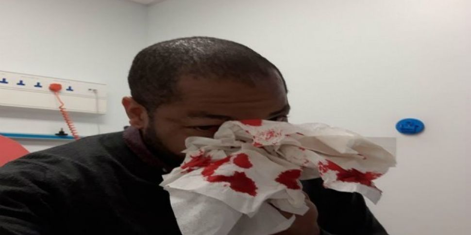 Racist Attack On Red Luas Line Left Me With Fractured Skull
