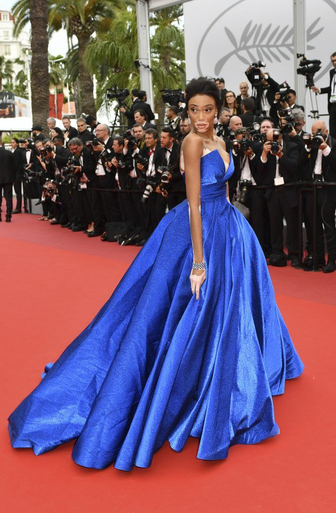 Canadian model Winnie Harlow poses as she arrives on May 18, 2017 for the screening of the film 'Loveless' (Nelyubov) at the 70th edition of the Cannes Film Festival in Cannes, southern France.  (Photo LOIC VENANCE/AFP/Getty Images)