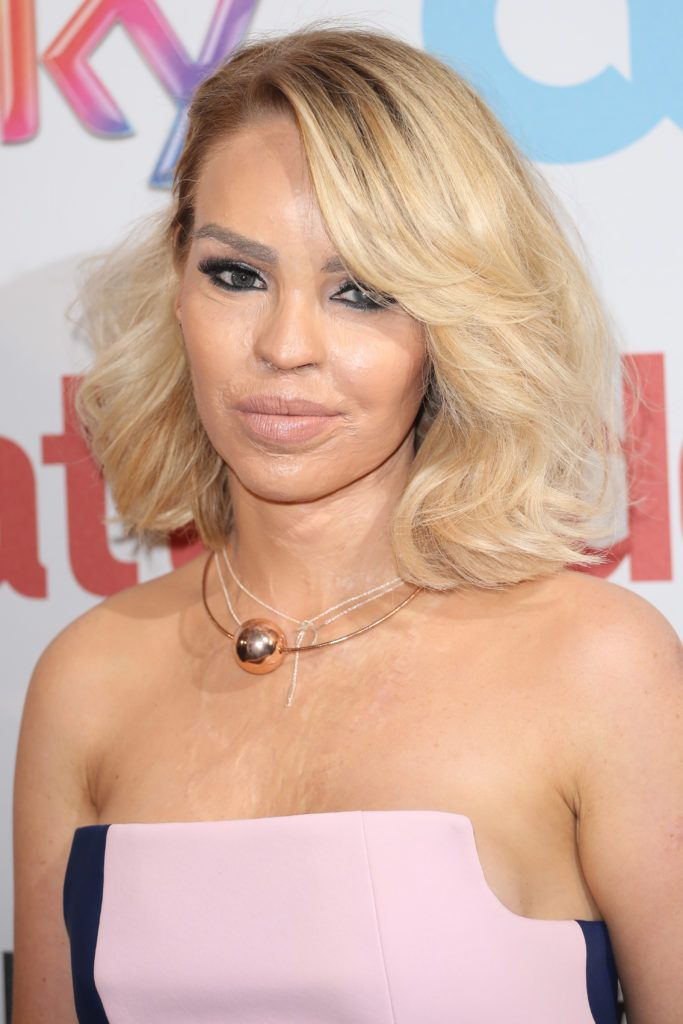 Katie Piper at The Attitude Awards 2016 on 10 Oct 2016 (Photo: Lia Toby/WENN.com)