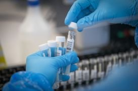 Demand For Pcr Testing Of Employees Has 'Sky-Rocketed,' Provider Says
