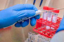 Us Coronavirus Death Toll Tops 400,000
