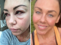 Michelle Heaton Shares Transformation Photos To Mark National Sober Day
