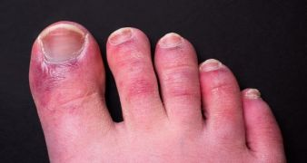 'Covid Toes' Could Be Side Effect Of Immune System's Response To Virus – Study