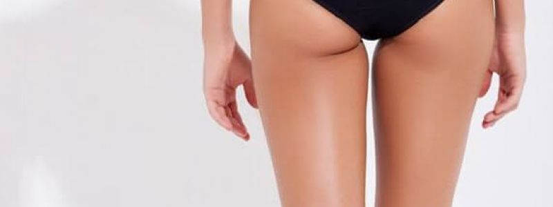 SAY GOODBYE TO CELLULITE WITH CELLFINA