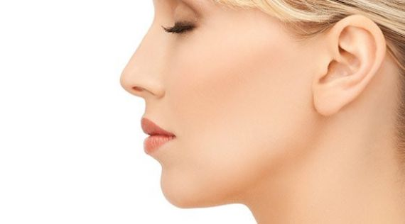 <p>Rhinoplasty<br />