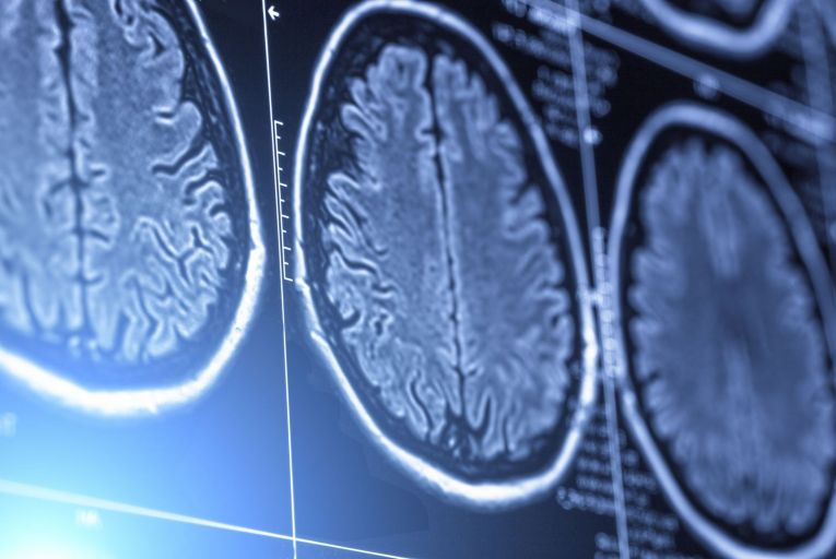 200 brain tumour patients request exclusion from research study