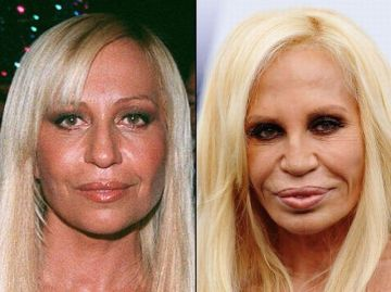 Celebrities Best and Worst Surgery