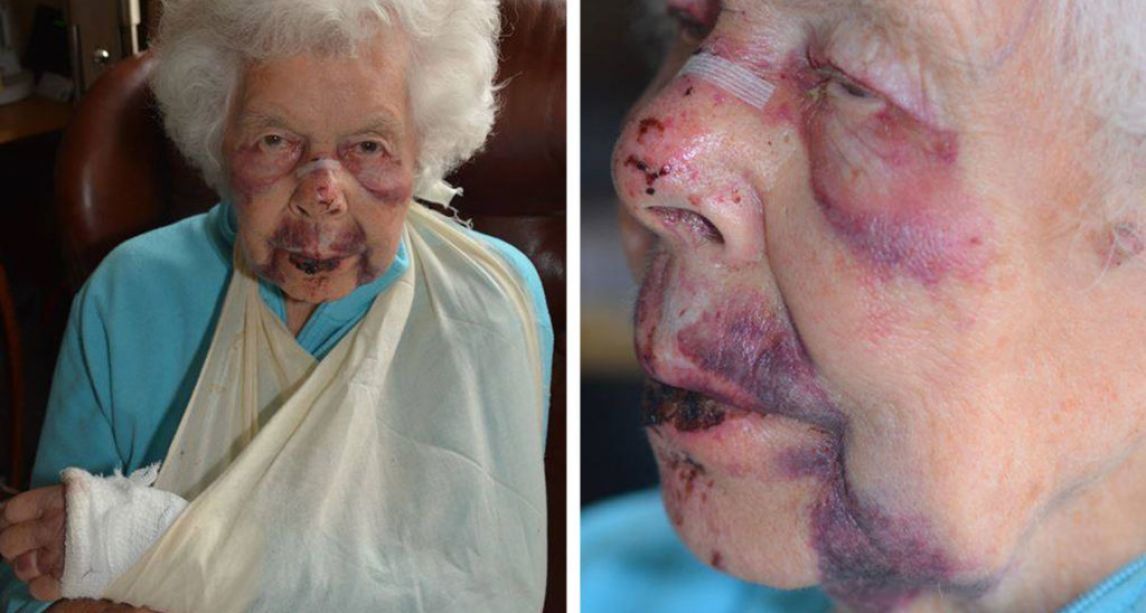 'Despicable' – Police release shocking pictures of 88-year-old robbery victim