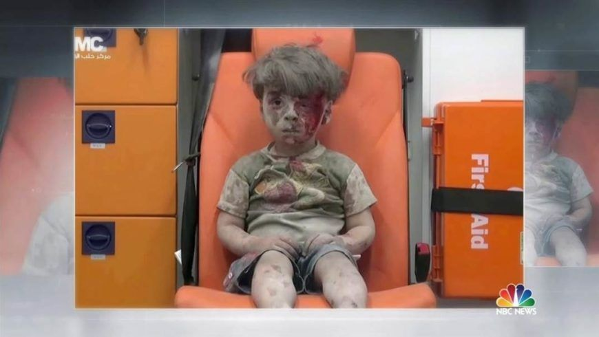 Omran Child Syria War