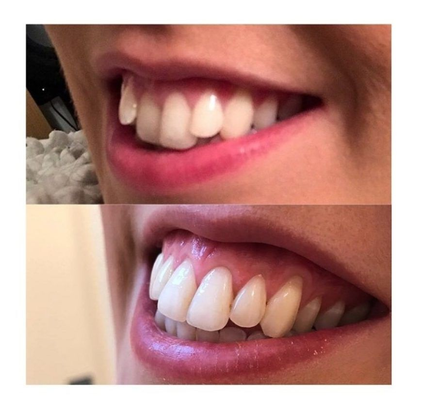 Before And After 1