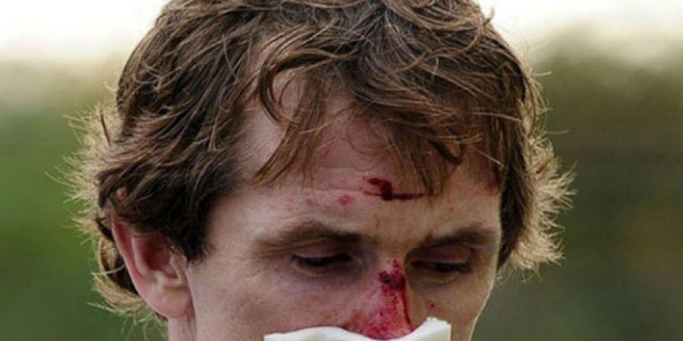 Tony McCoy suffers broken teet...