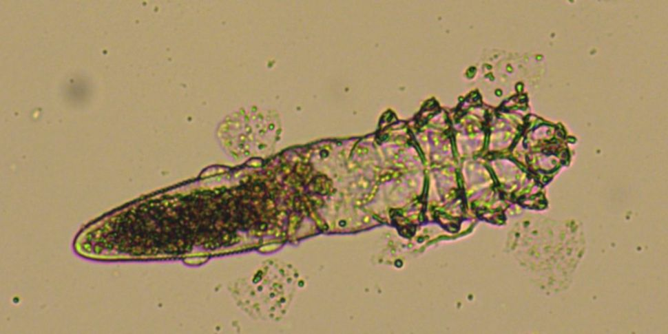 Demodex: The Animal That Lives...