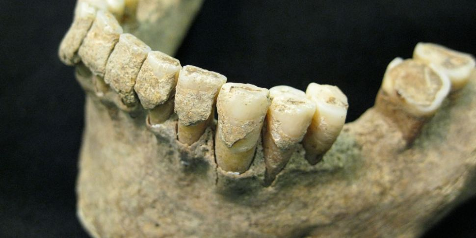 Dental Plaque: The Unexpected...
