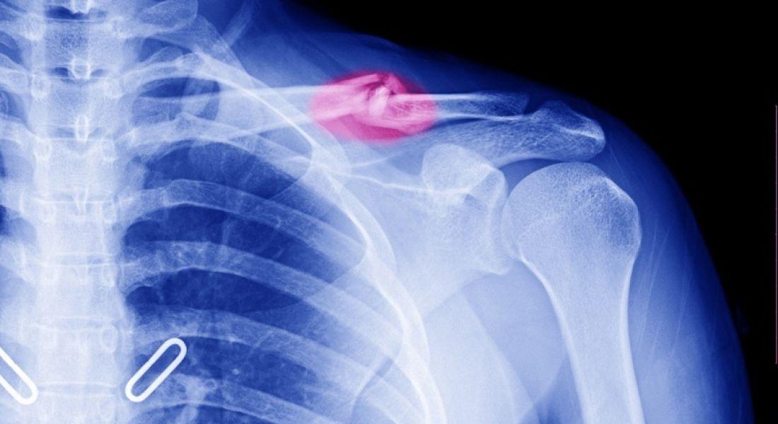 broken-bones-surgacoll-shutterstock