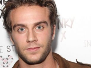 Max Morley Gets Hair Transplan...