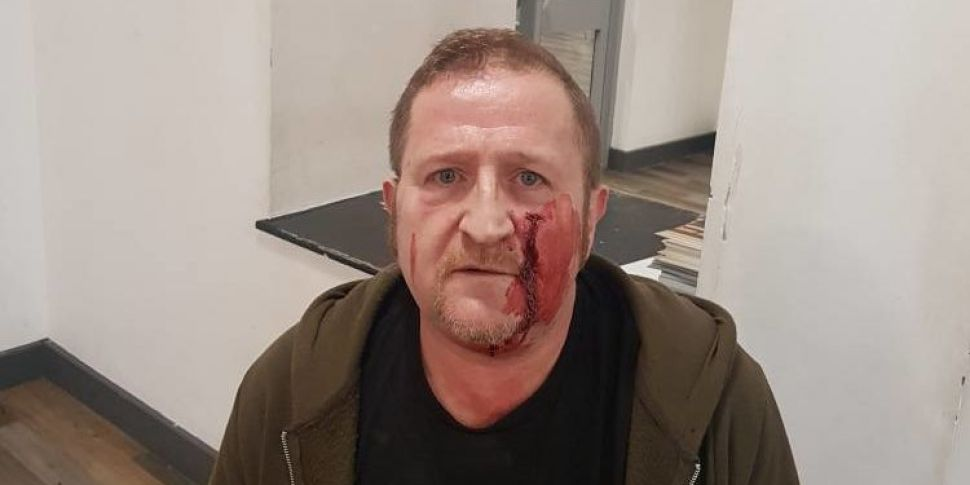 Man Describes Ambush In Dublin...